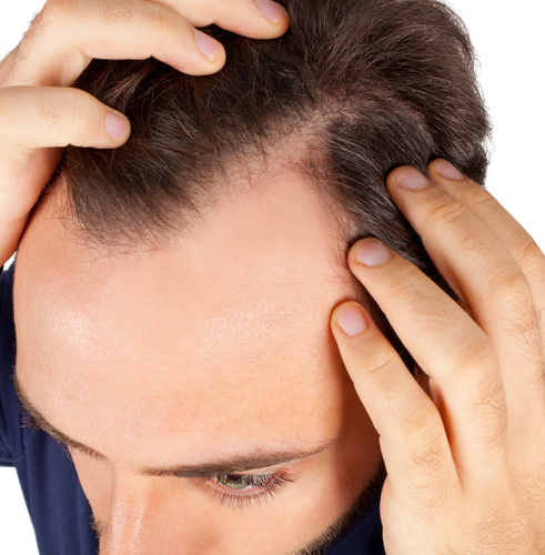 Best Hair Loss Treatment For Men and hair loose soluation